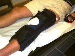 rekonstrukcja kolana