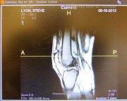 zdjęcie rentgenowskie kolana